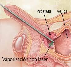 Intervención con láser KTP para la operación de la Hiperplasia Benigna de Próstata